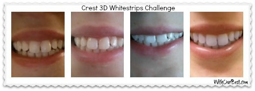 Teeth Whitening 20Day Challenge with CrestWhitestrips With Our